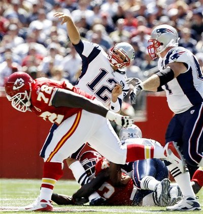 Look at Tom Brady's leg, legs aren't supposed to bend like that !